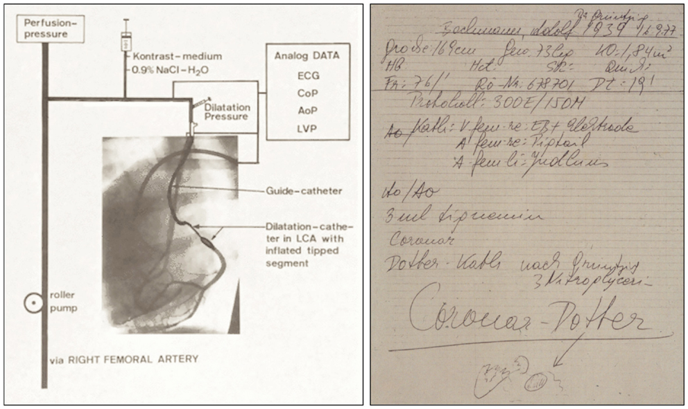 Frontiers | Balloon Angioplasty – The Legacy of Andreas Grüntzig ...