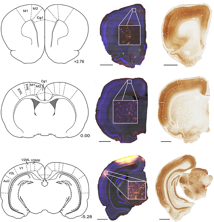 Frontiers   Cortical connectivity maps reveal anatomically distinct