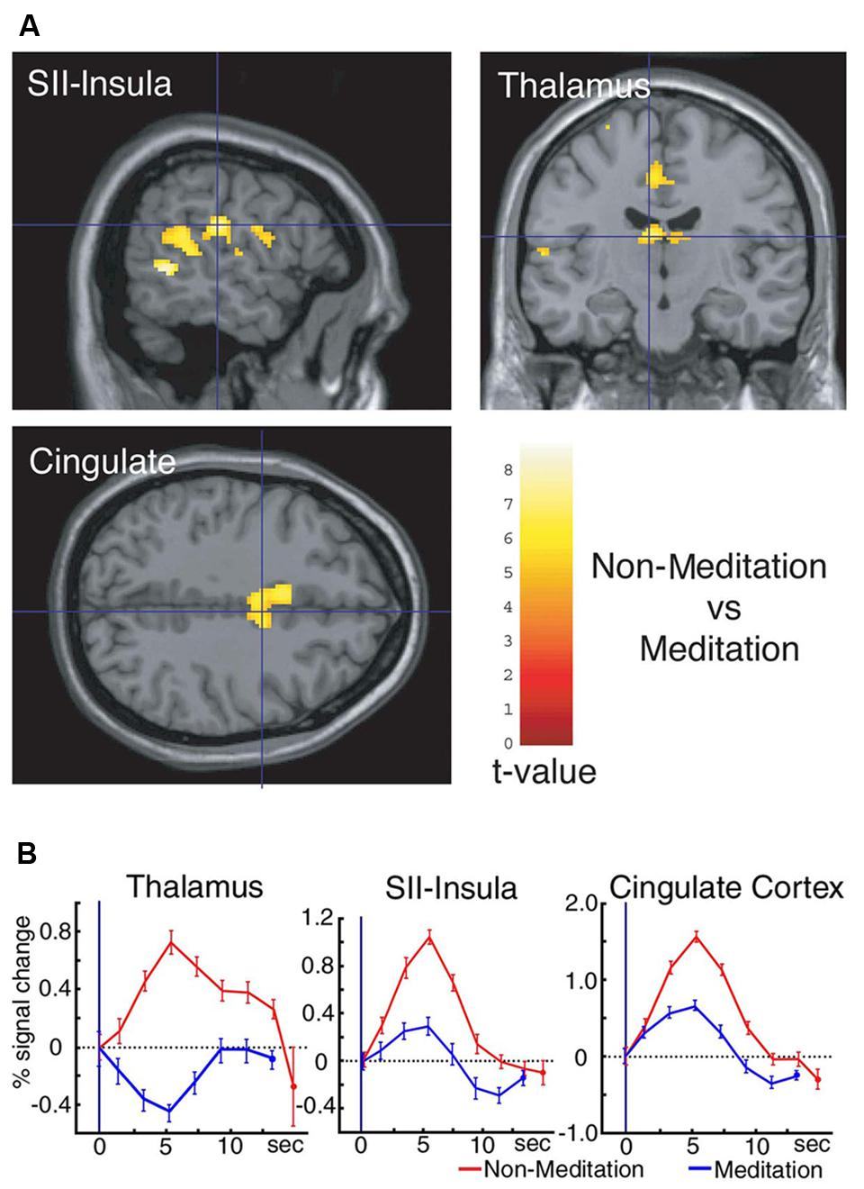 Gray Matter Density Increases During >> Frontiers Meditation Reduces Pain Related Neural Activity In The
