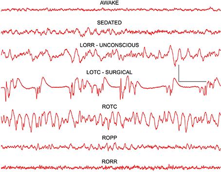 Resultado de imagen para brain consciousness anaesthesia eeg