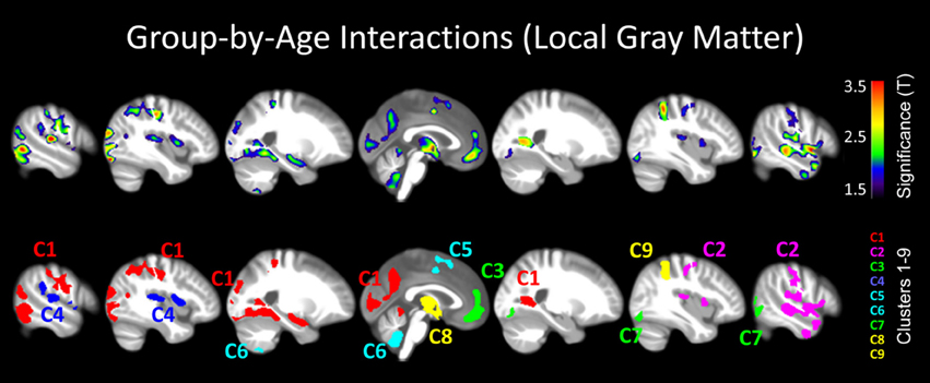 Gray Matter Density Increases During >> Frontiers Forever Young Er Potential Age Defying Effects
