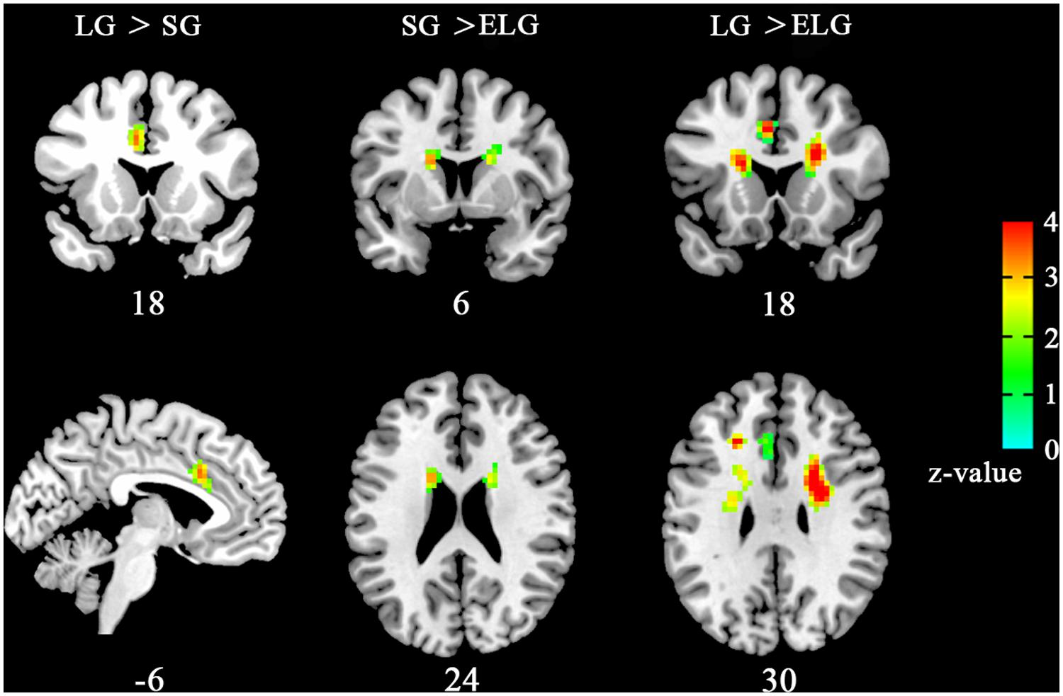 Brain imaging studies on sexuality have demonstrated that a small cluster of neurons in the