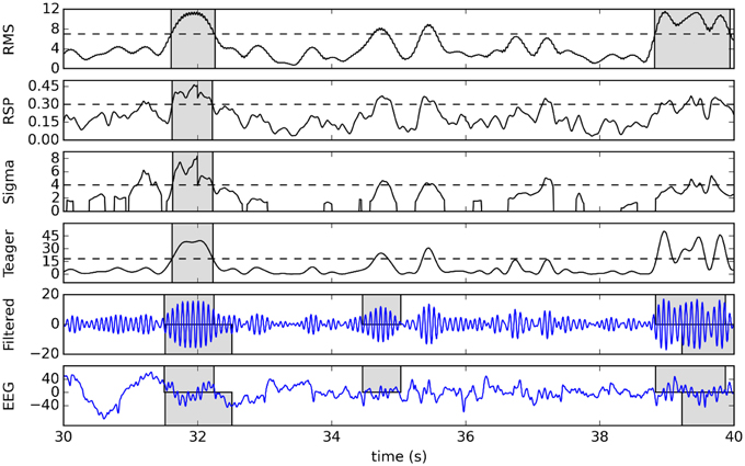 Frontiers | Automatic sleep spindle detection: benchmarking with