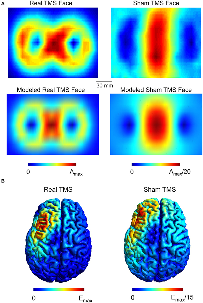 Frontiers Is Sham Ctbs Real Ctbs The Effect On Eeg