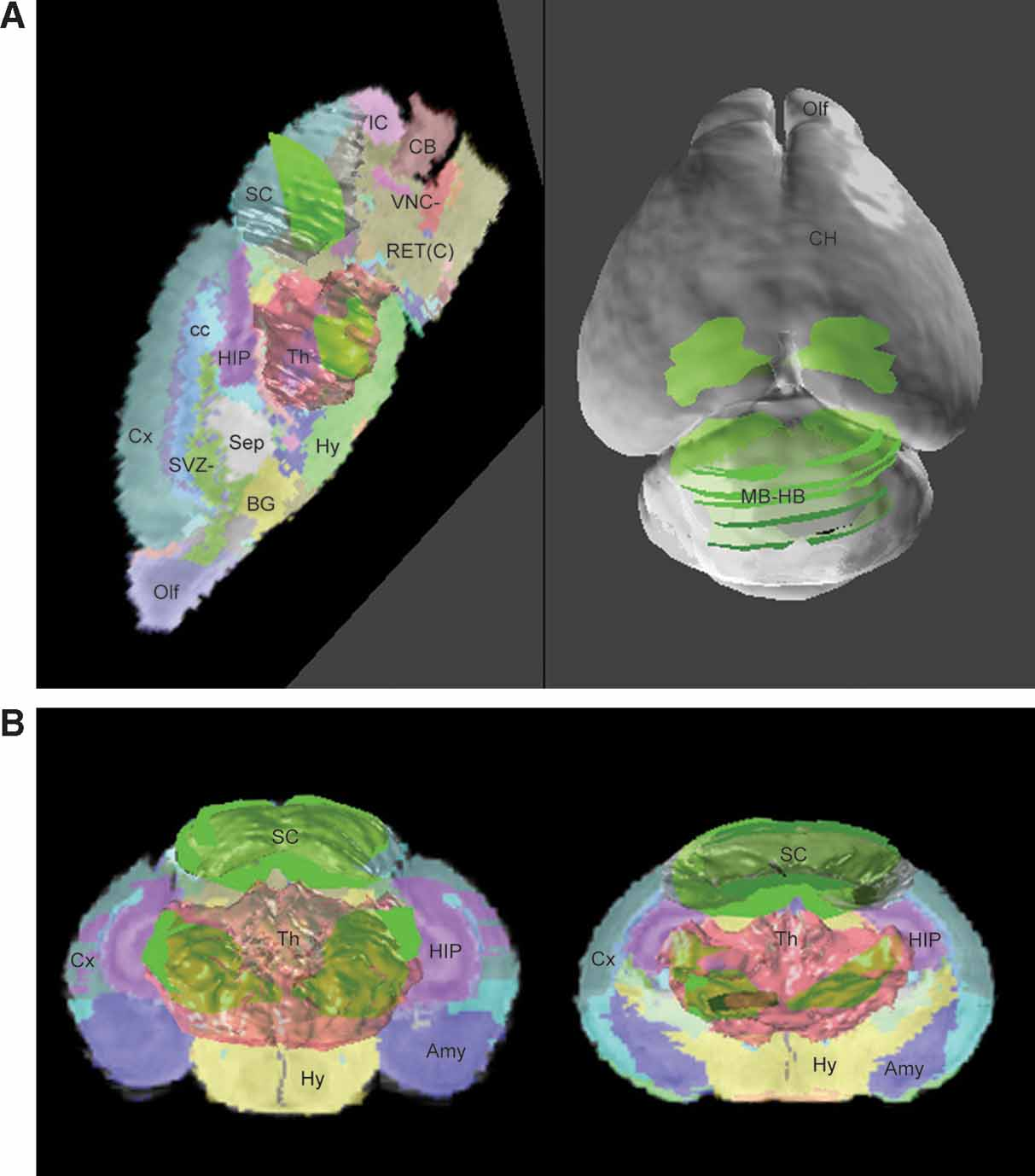 Frontiers | A high-resolution anatomical framework of the neonatal ...