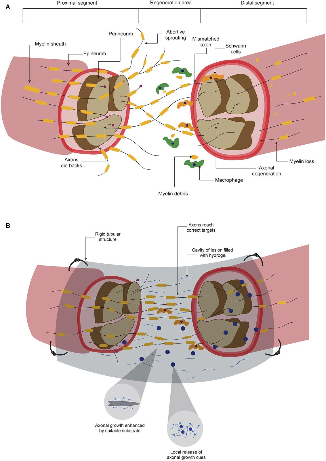 Nerve Repair and Regeneration
