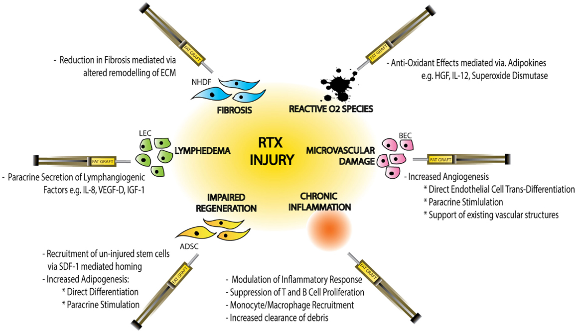 Frontiers Adipose Derived Stem Cells In Radiotherapy Injury A New
