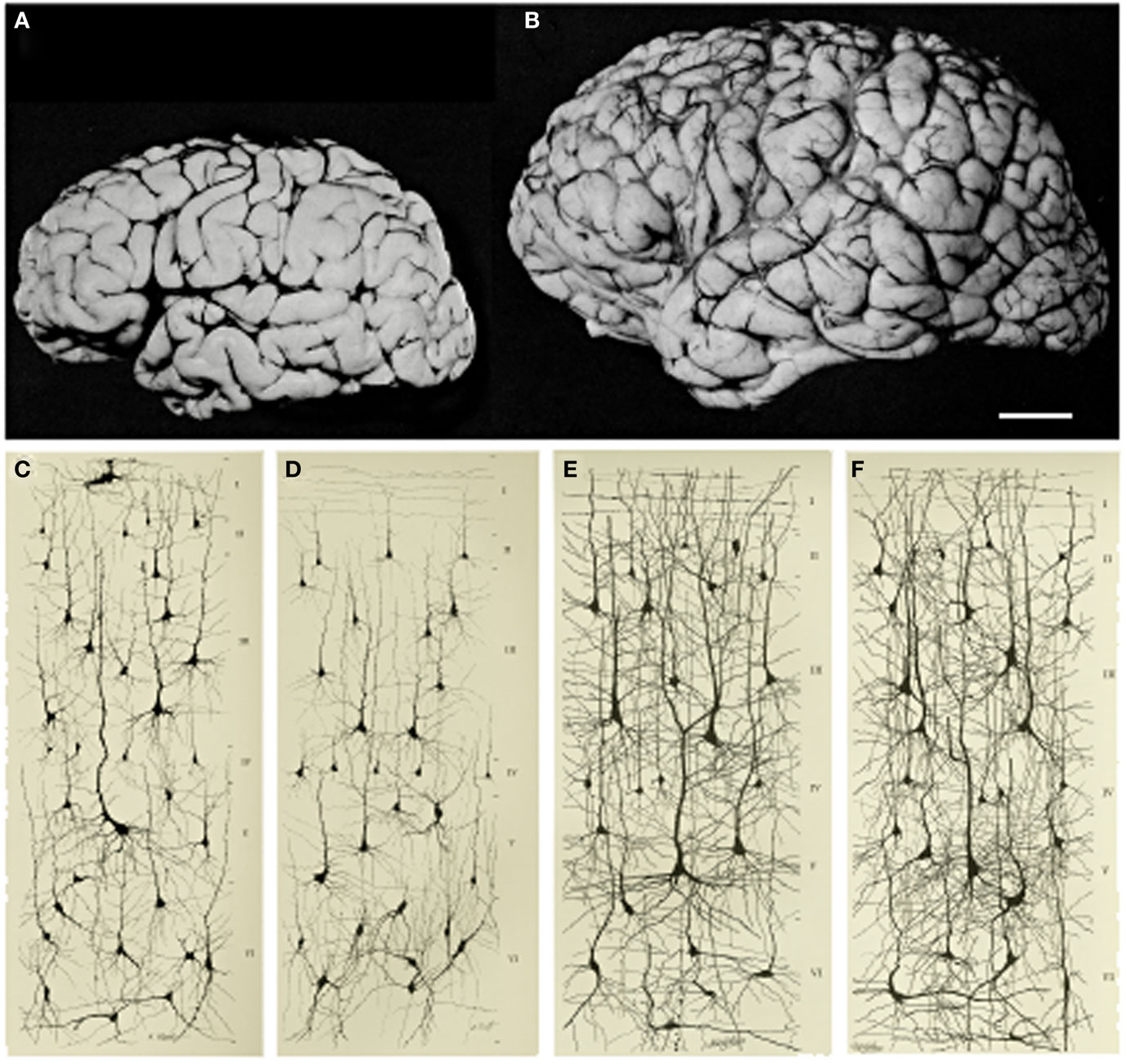 Figure 1 - Increase in brain size and the maturation of cortical circuits.