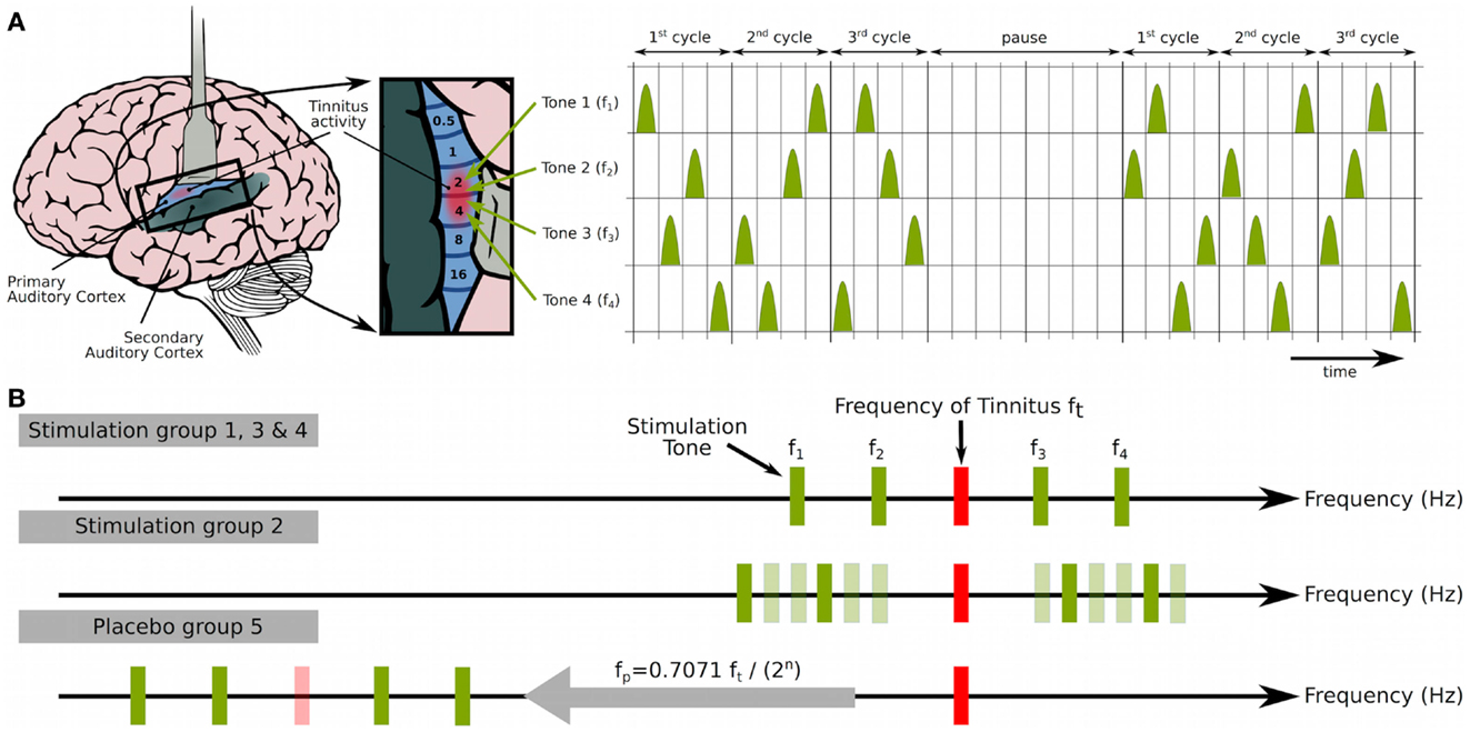 Frontiers Maladaptive Neural Synchrony In Tinnitus Origin And Birds Singing Analog Signal Generator Circuit Shown Is An Chirp