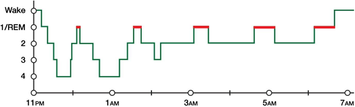 Figure 1 - A good night's sleep.