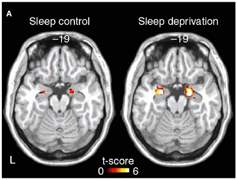 Figure 2 - The effects of not enough sleep on a part of the brain involved in emotion, the amygdala.