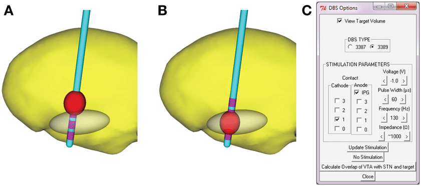 Figure 2 - A model for the effect of electrical stimulation in a patient's brain.