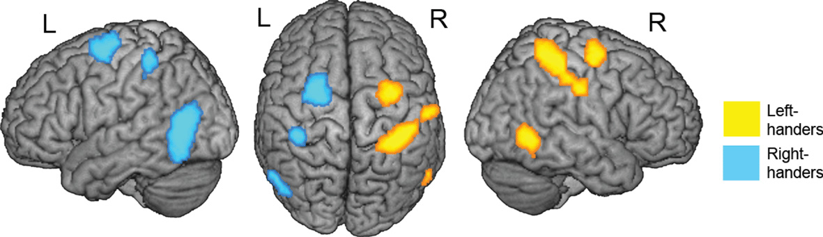 Figure 1 - Brain activation when participants imagined performing common hand actions.