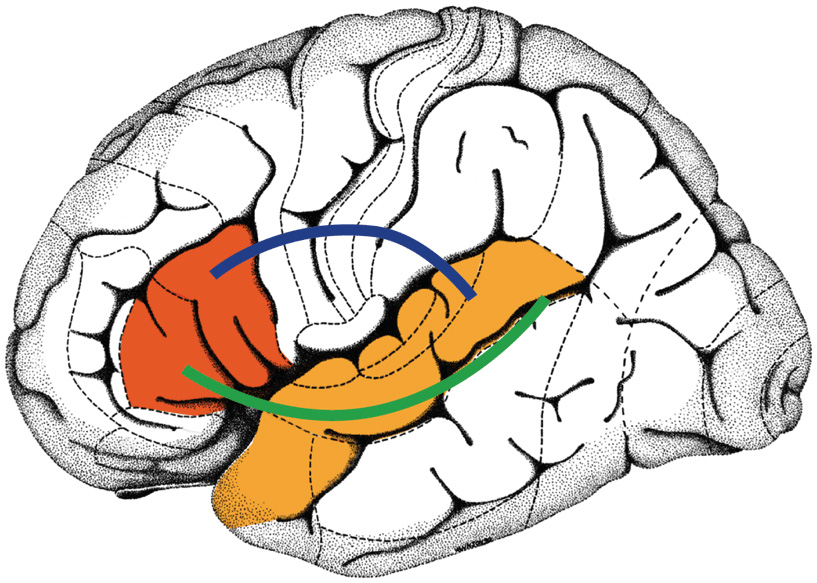Figure 2 - A view of a brain, as seen from the left side.