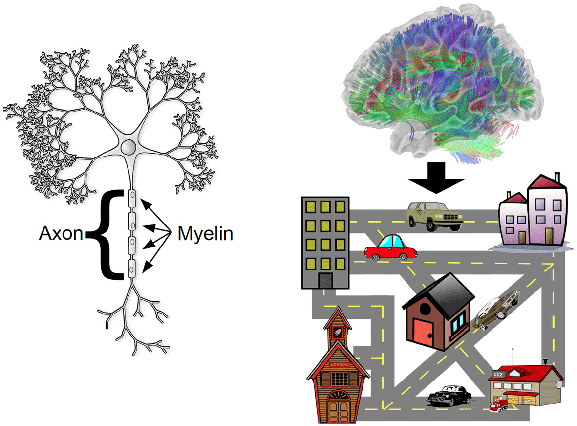 איור 1 - משמאל: איור של תא עצב שנראה כמו עץ, בעל סיב עצבי בשם אקסון (Axon) שדרכוֹ עוברות הודעות חשמליות לתאים שכנים.
