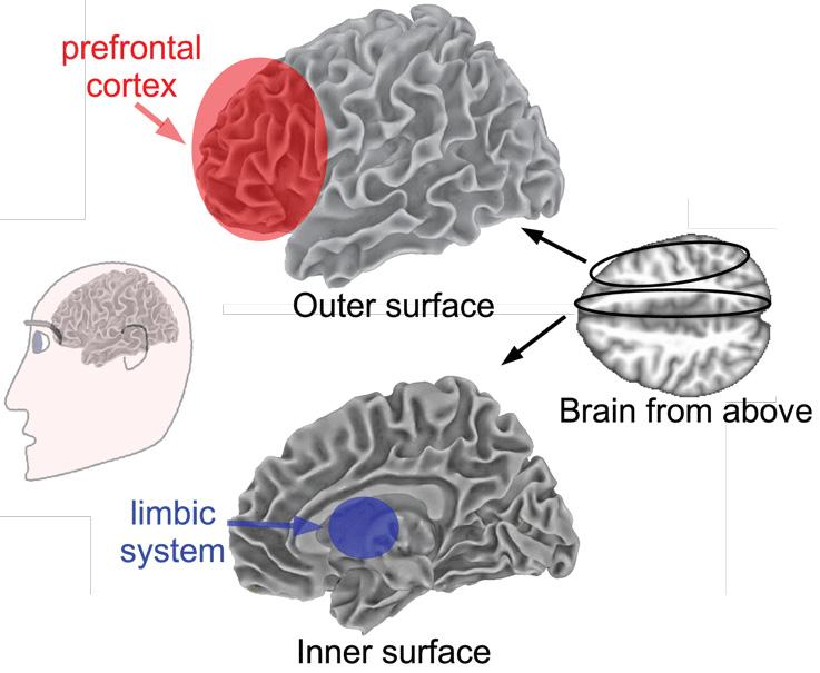 איור 3 - המחשה של מבנה המוח, כאשר פני השטח החיצוניים מוצגים למעלה ופני השטח הפנימיים מוצגים למטה.