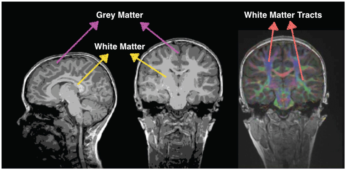 White Matter Counts Brain Connections Help Us Do 2 Frontiers