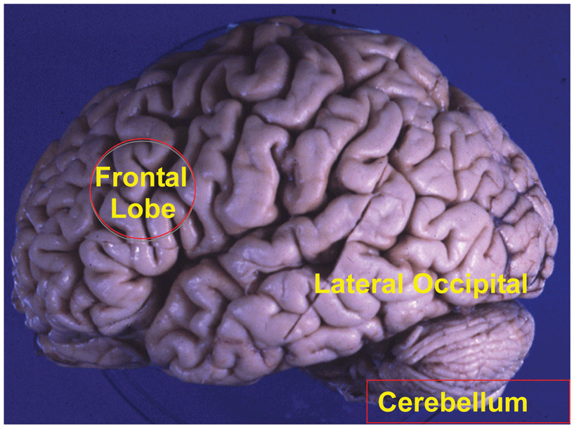 Figure 1 - Areas of the brain.