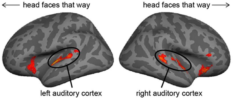 """איור 2 - אזורי המוח שהם פעילים יותר בזמן """"שגיאות"""" מאשר במהלך דיבור רגיל."""