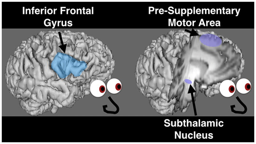Figure 2 - The network of brain areas believed to be involved in stopping includes the right inferior frontal gyrus, pre-supplementary motor area, and subthalamic nucleus.