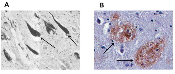 איור 1 - A. החיצים השחורים מצביעים על תאי העצב שיש בהם את החלבון טאו (שאחראי כאמור להתפתחות של מבני NFT).