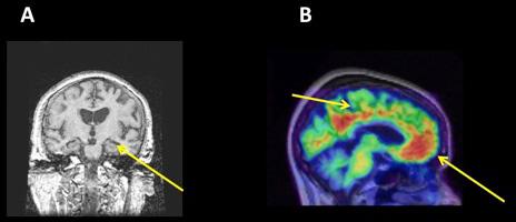 איור 2 - A. מבט חזיתי של המוח שנלקח באמצעות MRI.
