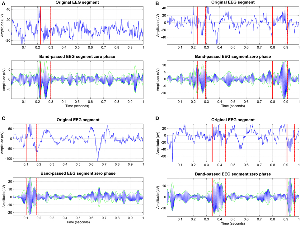 Frontiers | Stage-independent, single lead EEG sleep spindle