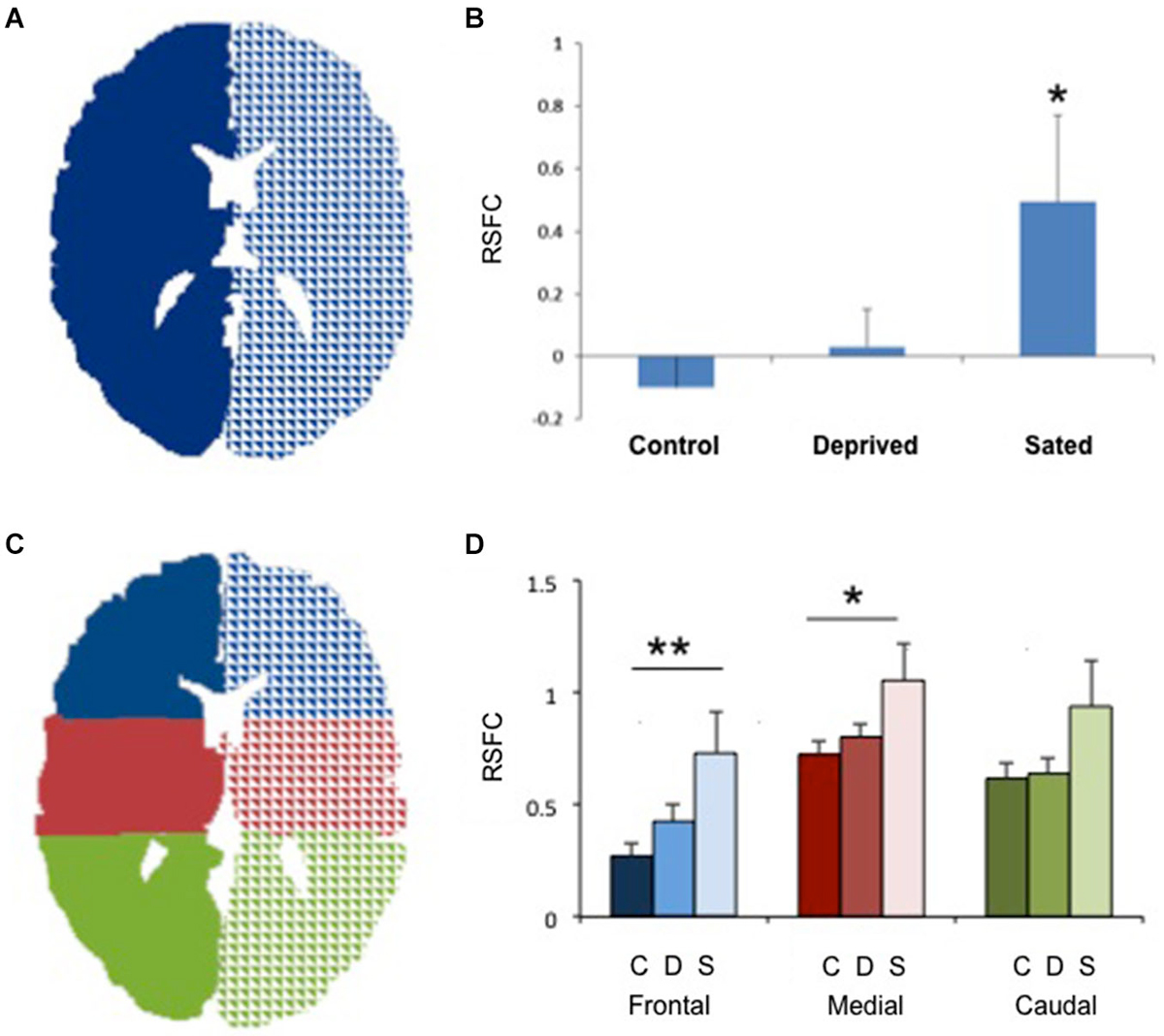 Frontiers | Alterations in interhemispheric functional and