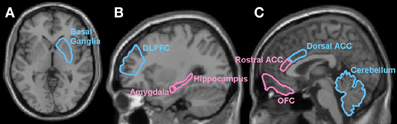 brain sex differences orbitofrontal cortex and fnir in Austin