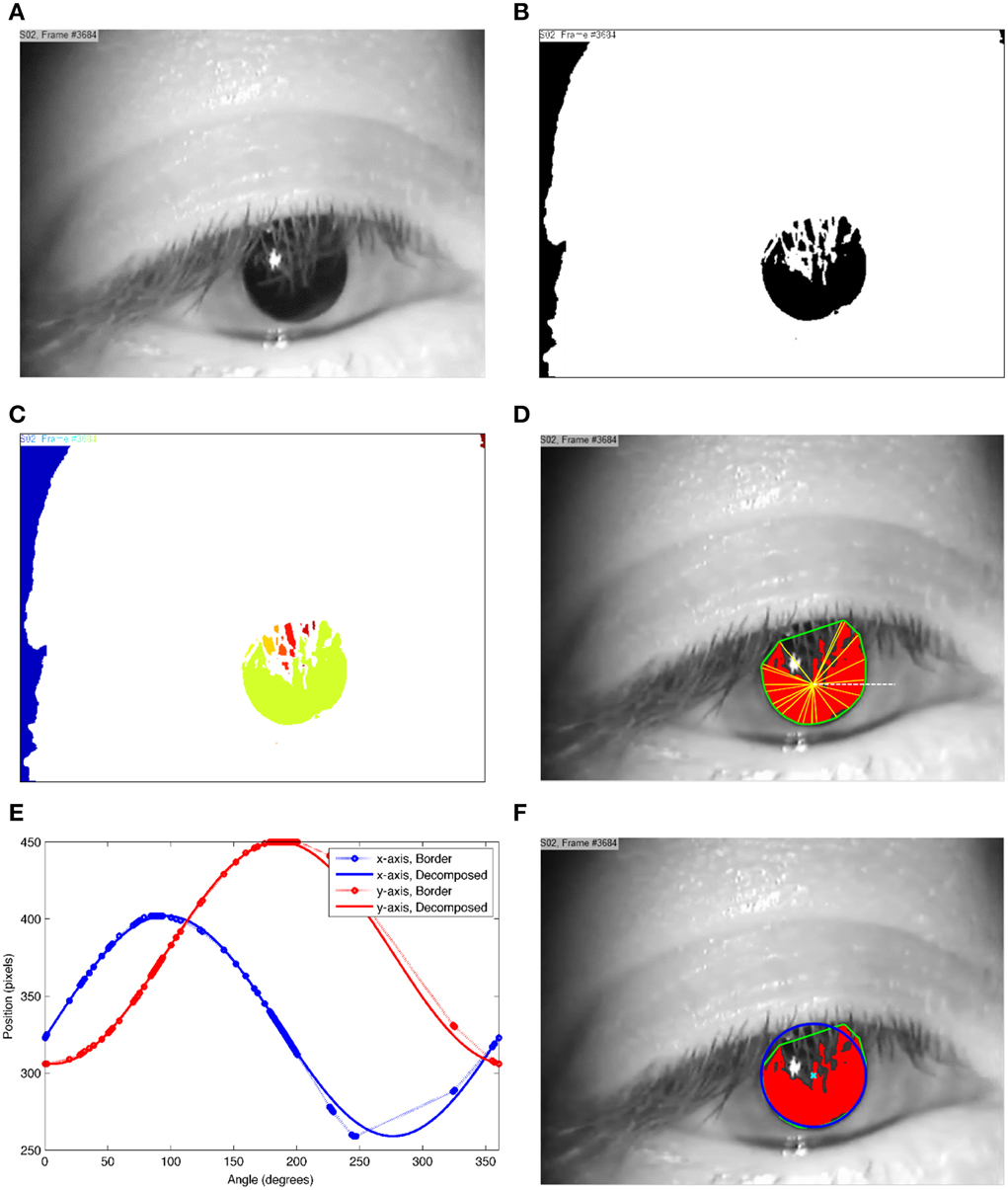 Frontiers | SET: a pupil detection method using sinusoidal