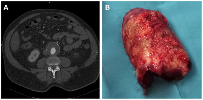 Frontiers the abdominal aortic aneurysm and intraluminal for Aortic aneurysm with mural thrombus