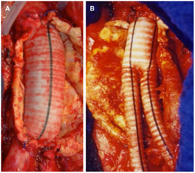 Frontiers the abdominal aortic aneurysm and intraluminal for Aortic mural thrombus