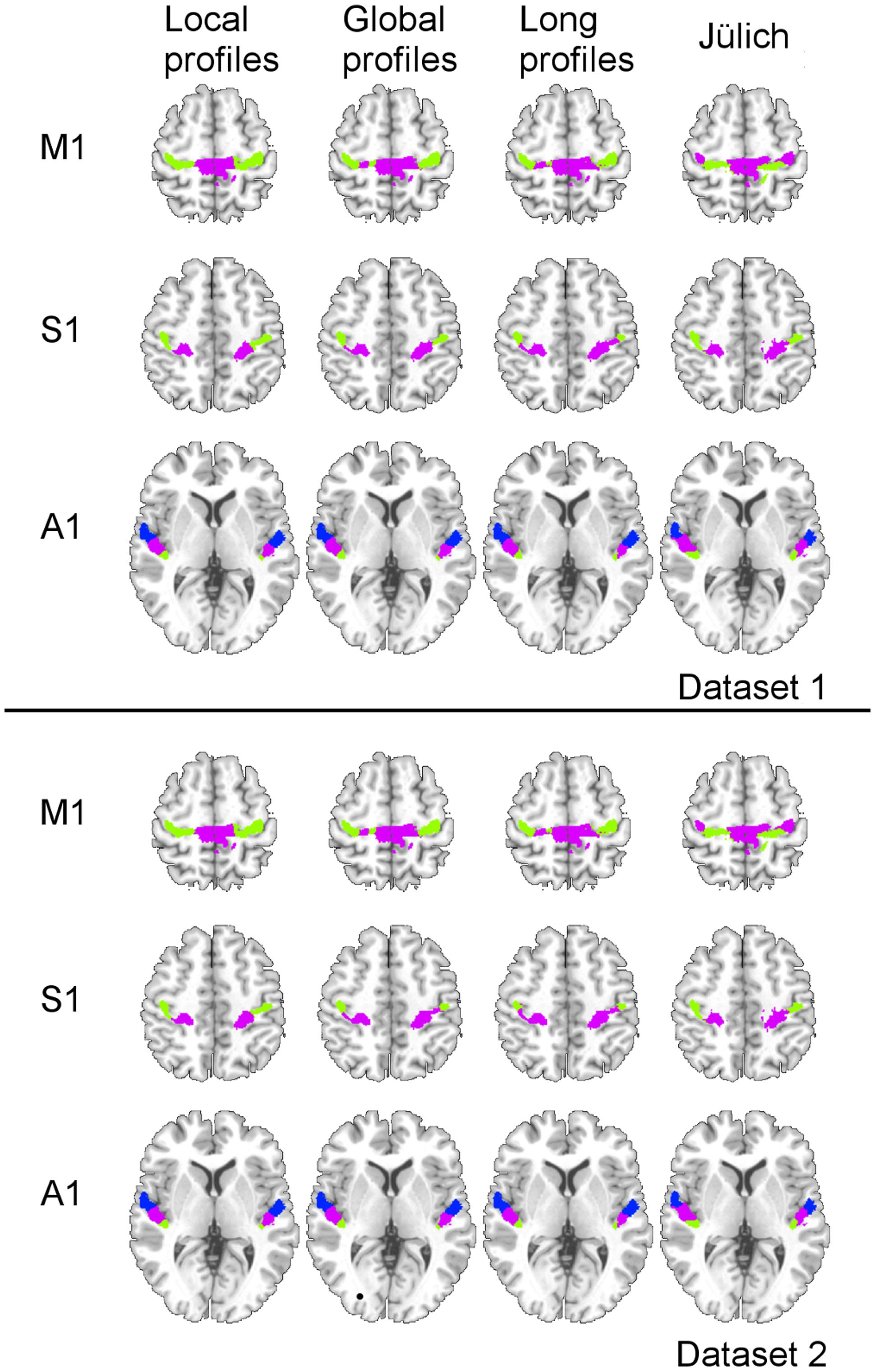 Frontiers Parcellation Of The Primary Cerebral Cortices Based On