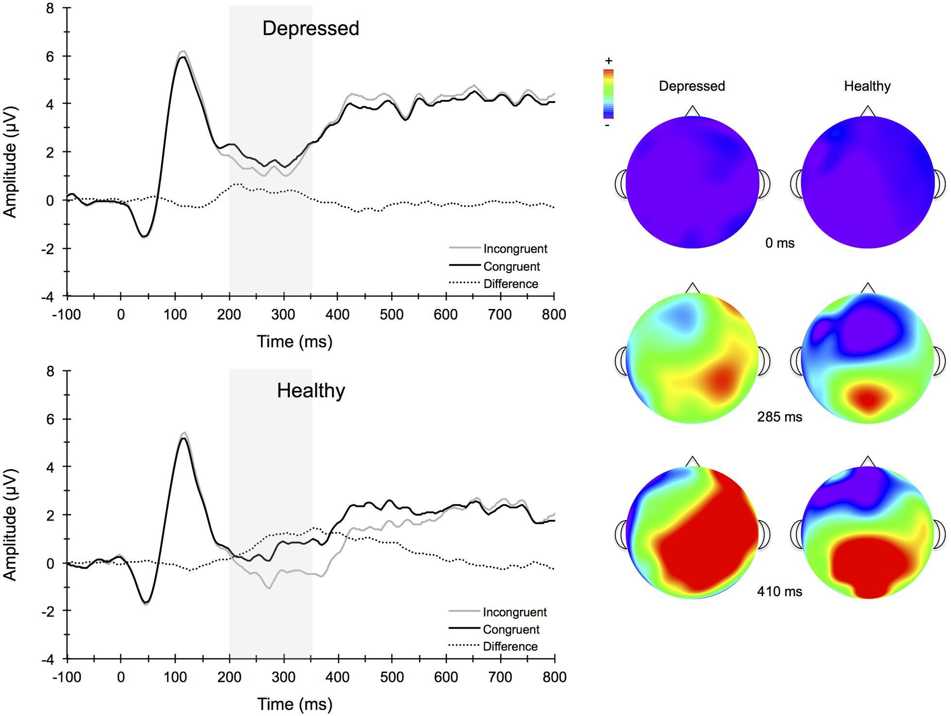 Bipolar Disorder&nbspResearch Paper