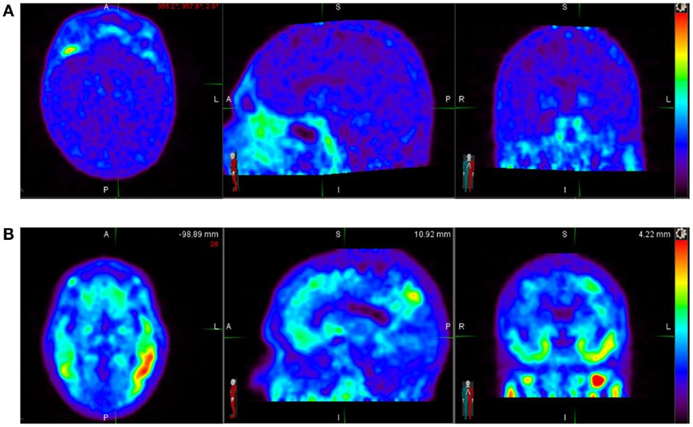 Study of brain activity