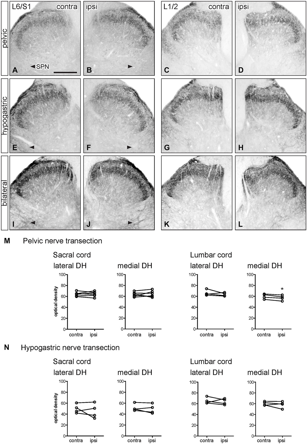 Frontiers Peripheral Injury Of Pelvic Visceral Sensory Nerves
