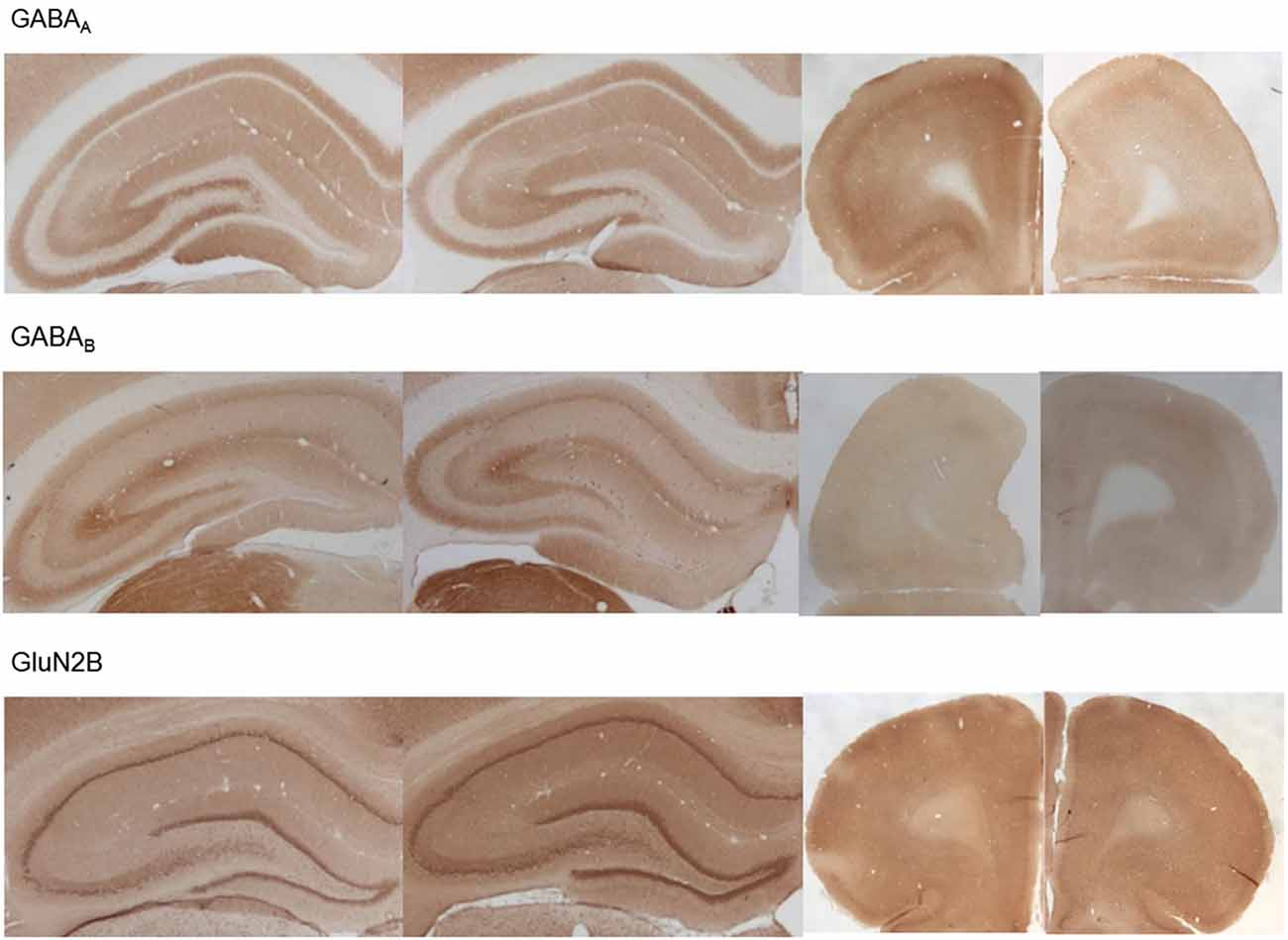 Frontiers Altered Neuronal Excitability Underlies Impaired Ensure Fos Chocolate Tin 1000 Gr