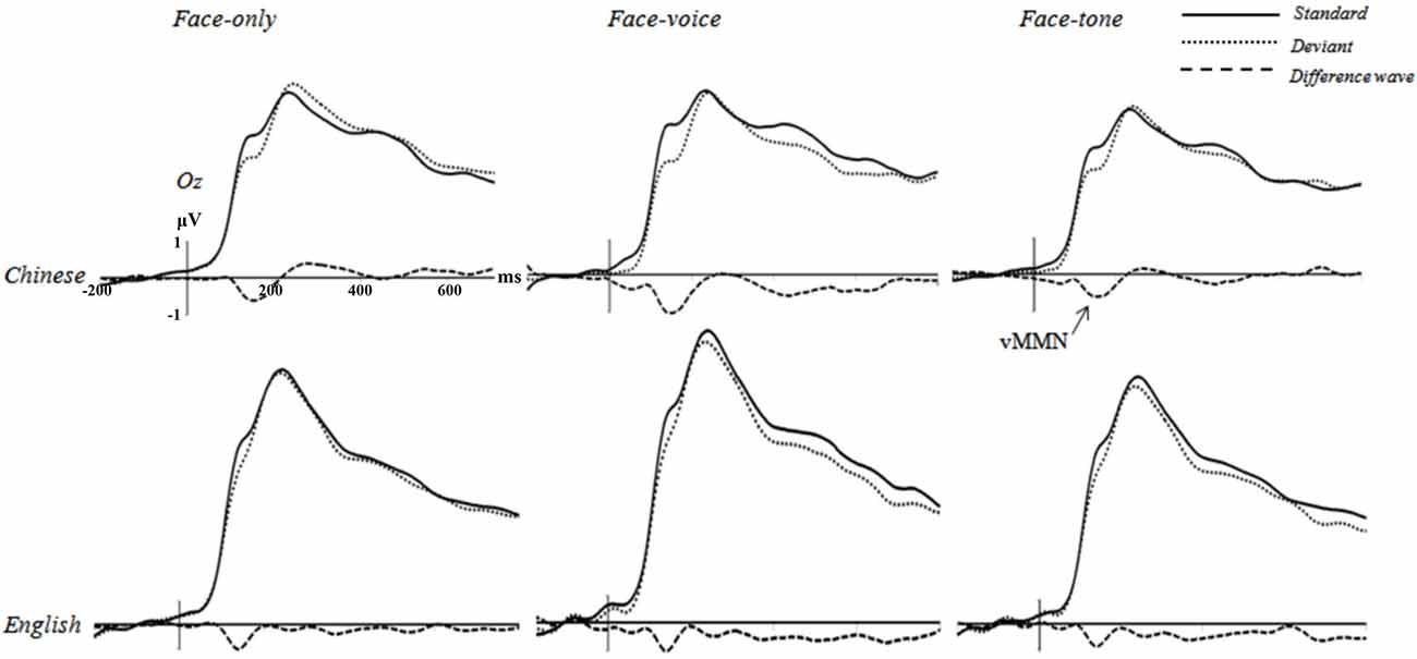 Frontiers Cultural Differences In On Line Sensitivity To Emotional Passive Tone Control A Network Permits The Listener