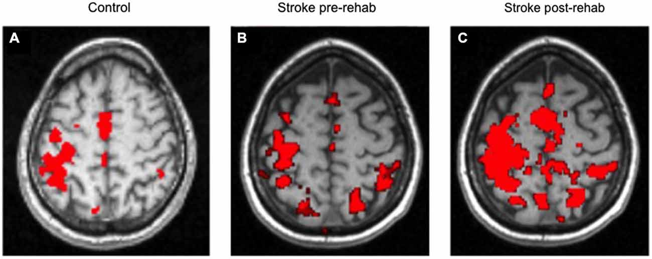 Frontiers | Recovery of post stroke proximal arm function, driven by