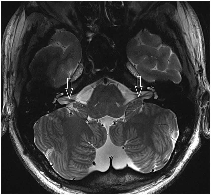 Frontiers | 7-Tesla MRI demonstrates absence of structural lesions ...