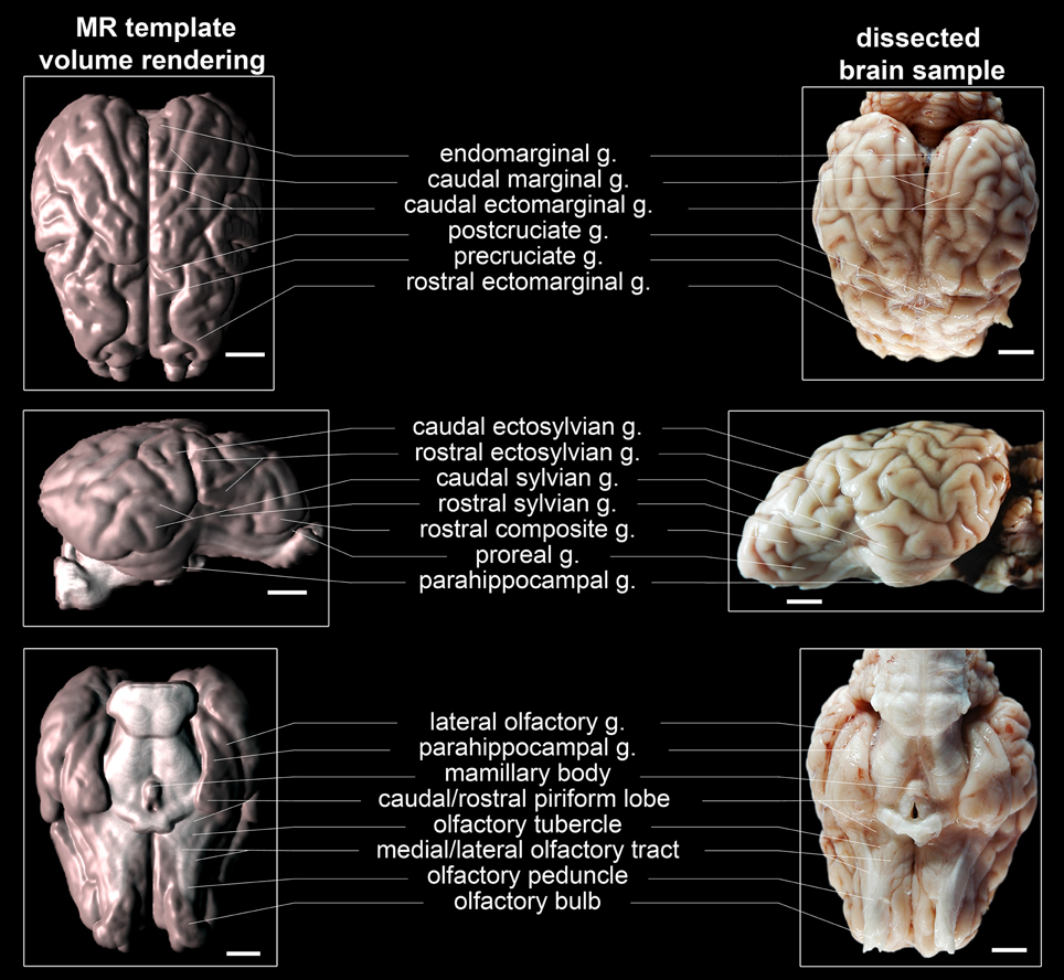 Structure Of The Human Brain A Photographic Atlas Pdf