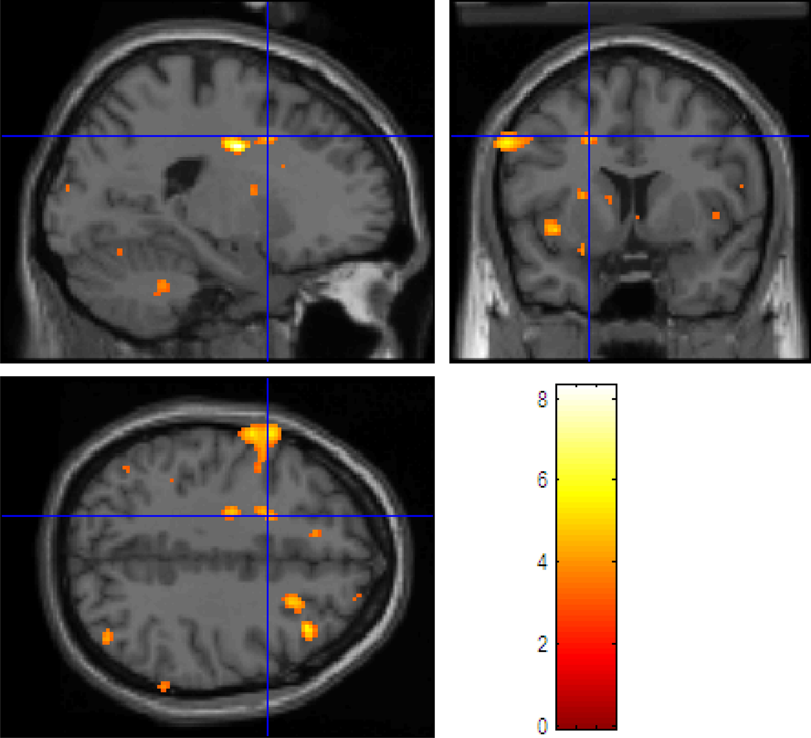 PET Scans and fMRI Compared – Brainy Behavior