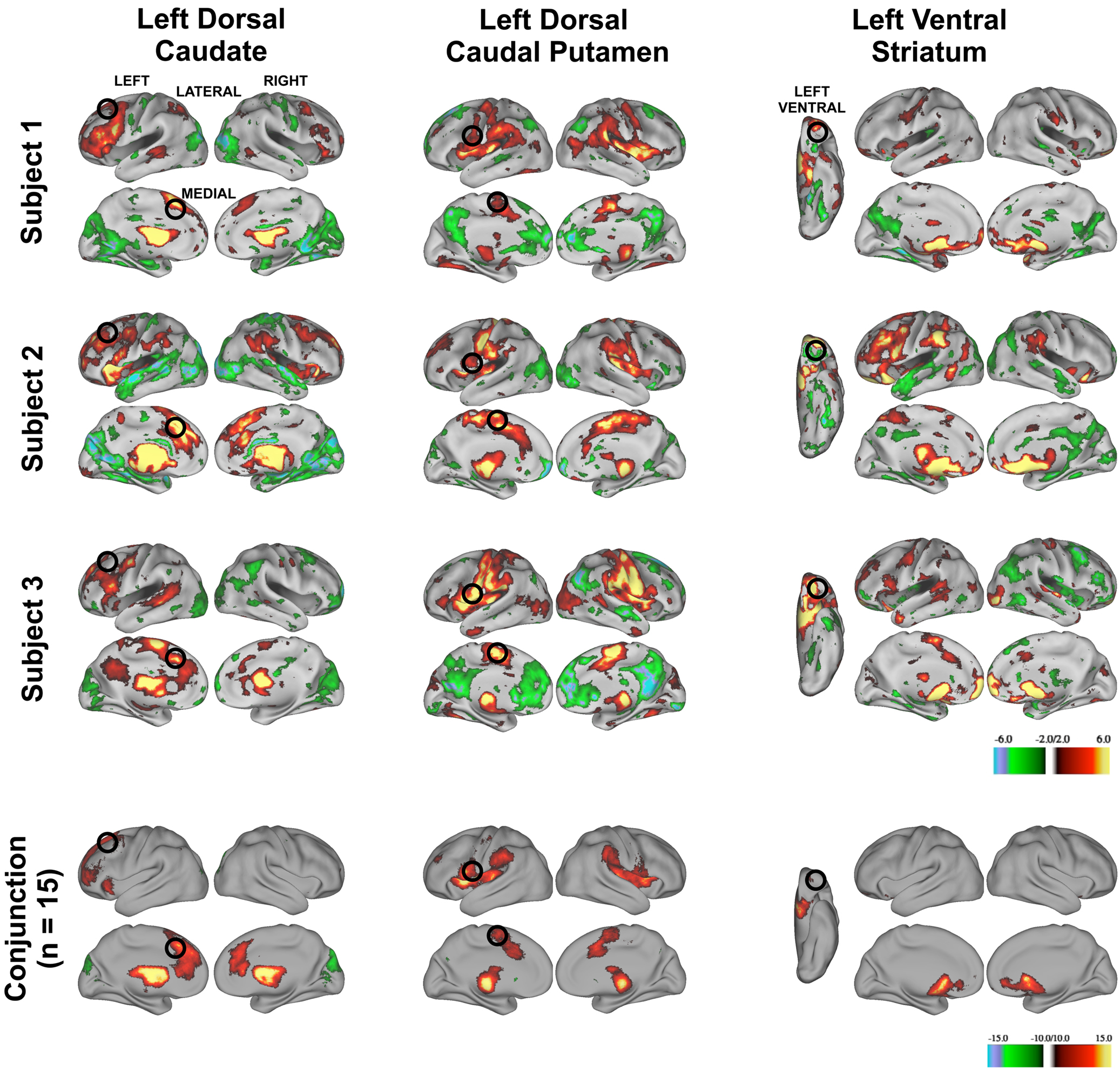 Frontiers | Identifying basal ganglia divisions in individuals using ...