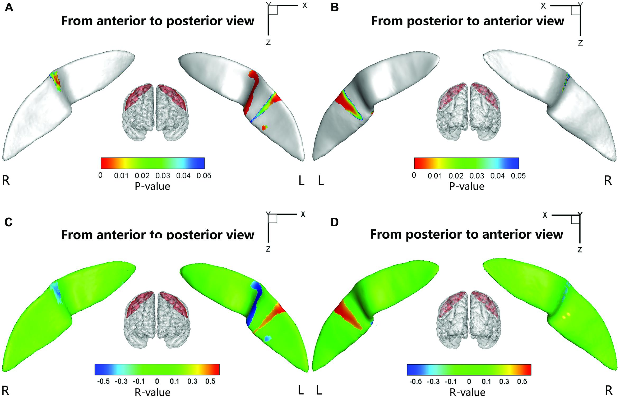 Frontiers | Abnormal surface morphology of the central sulcus in ...