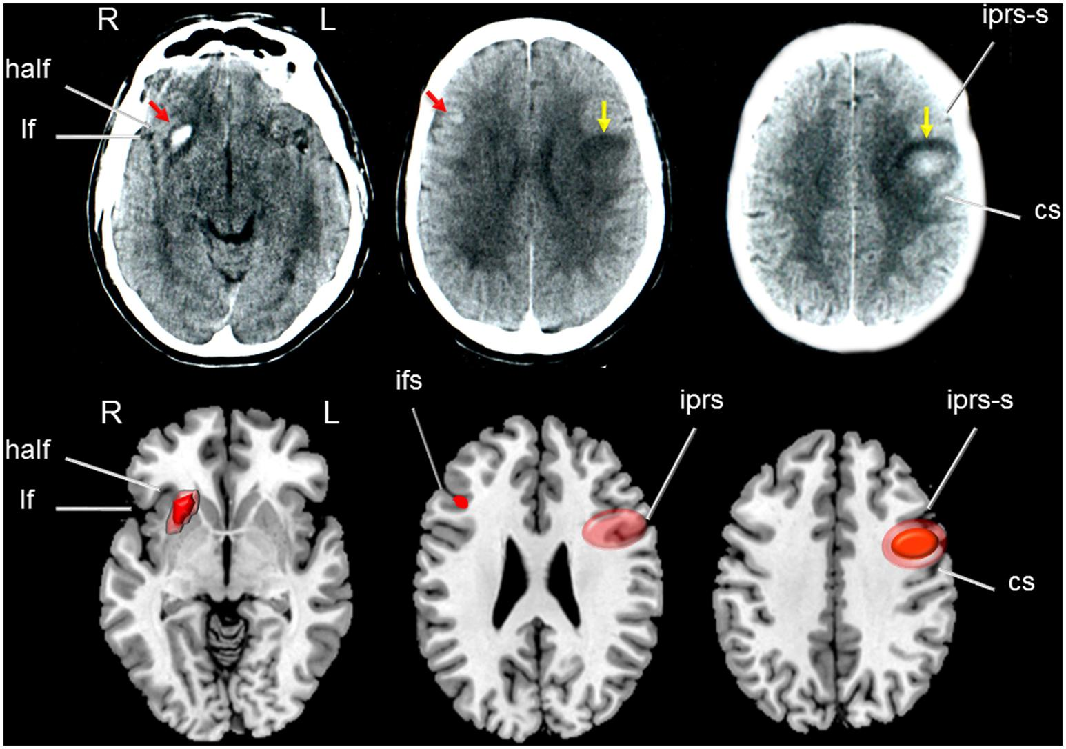 Frontiers   Loss of regional accent after damage to the speech production  network   Human Neuroscience