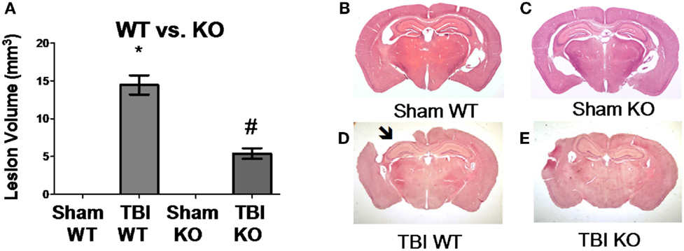 Frontiers Cathepsin B Is A New Drug Target For Traumatic Brain