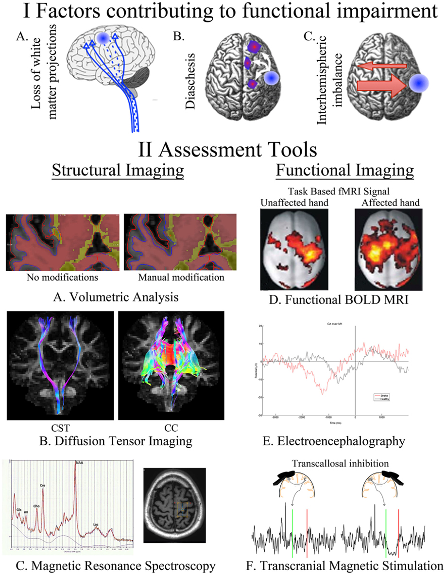 Frontiers A Review Of Transcranial Magnetic Stimulation And Meyer E 57h Wiring Diagram For Plow