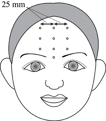 Frontiers | Non-contact measurement of facial surface