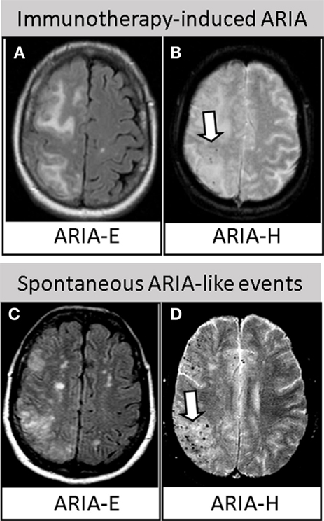 Frontiers Anti A Autoantibodies In Amyloid Related