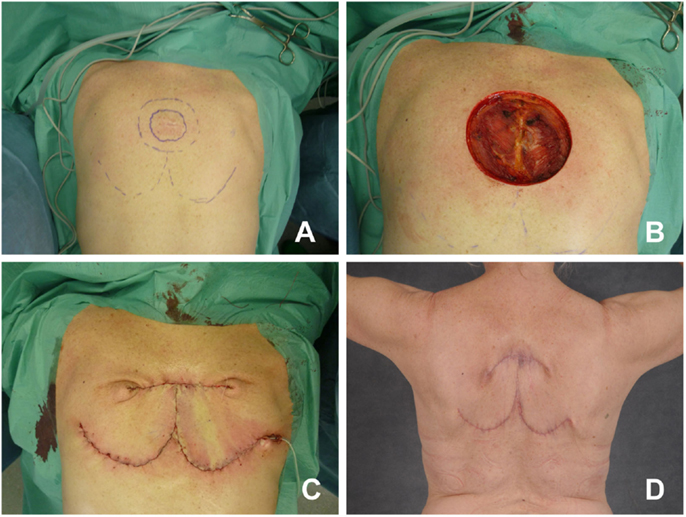 Frontiers | Reconstructive Options for Oncologic Posterior
